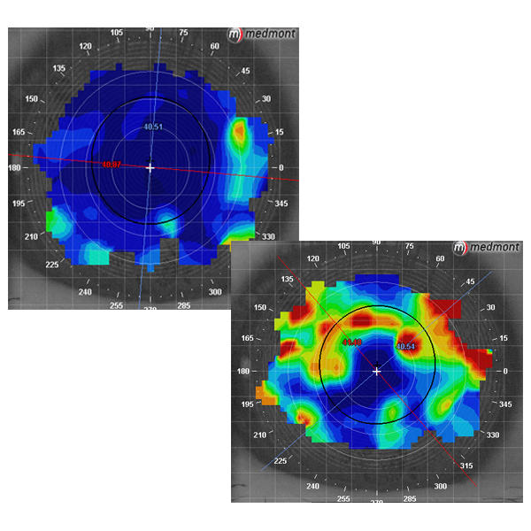 Corneal topography images